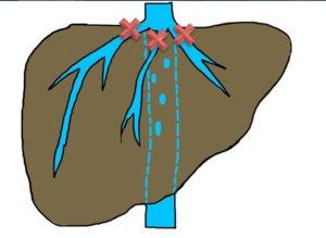 Синдром Бадда-Киари причины симптомы диагностика и лечение