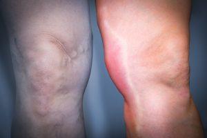 Диагностика и лечение тромбофлебита нижних конечностей