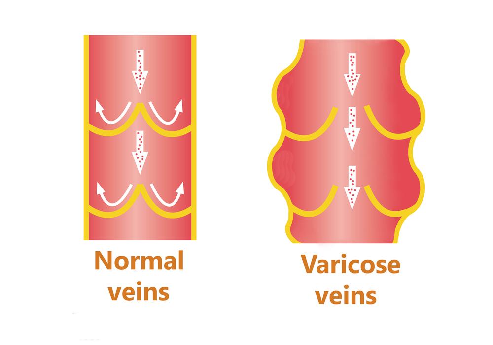 Что такое варикоз вен