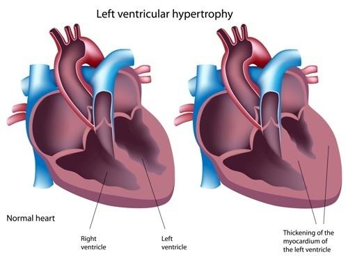 Признаки гипертрофии левого желудочка что это такое