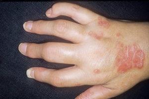 Псориатический артрит симптомы причины классификация
