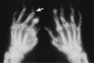 Псориатический артрит диагностика и лечение