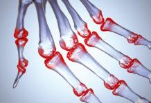 Ревматоидный артрит причины механизмы развития симптомы