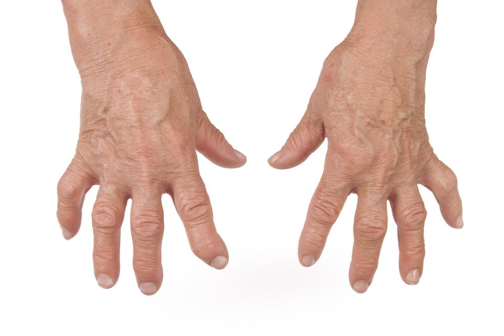 Артрит виды причины возникновения симптомы и общая клиническая картина