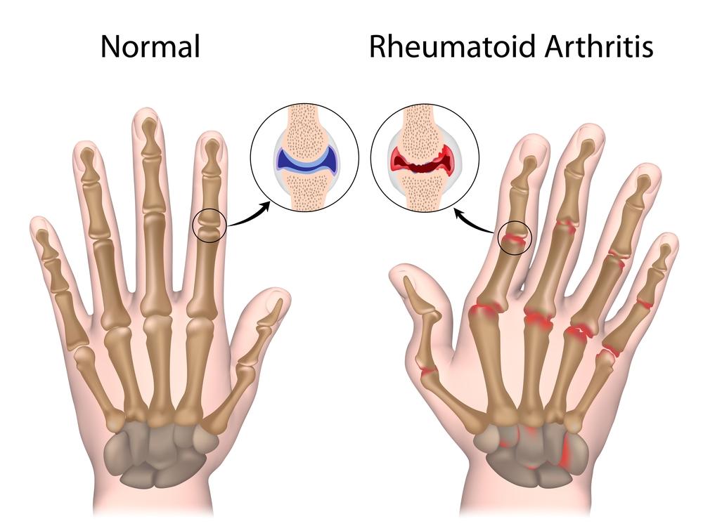 синдром стилла при ревматоидном артрите