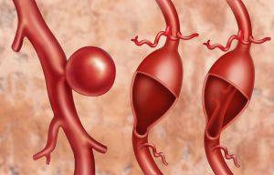 Какой размер аорты считается аневризмой -