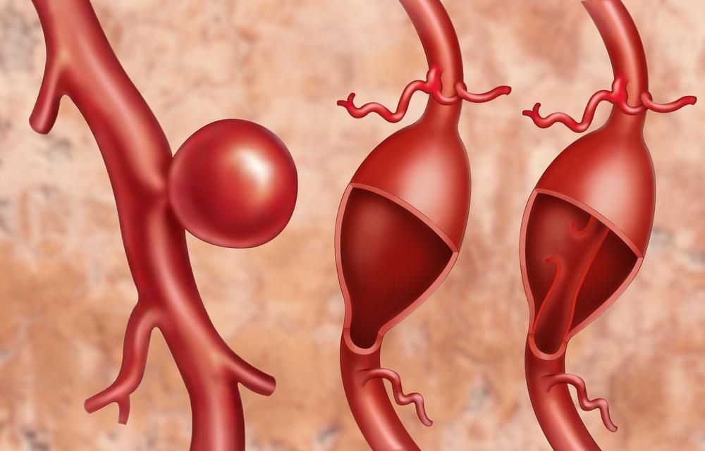 shutterstock 469988582 - Membedah aneurisma aorta - penyebab, gejala dan pengobatan