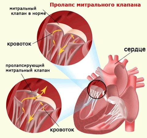 Пролапс митрального клапана симптомы и лечение при беременности