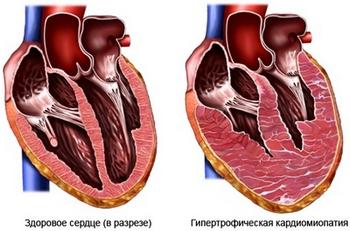 кардиомиопатия у беременных