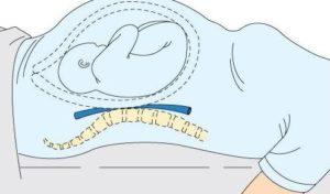синдром нижней полой вены при беременности