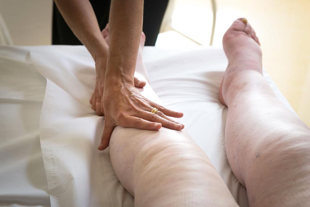 Лимфостаз – причина тяжести в ногах. Лечение лимфостаза