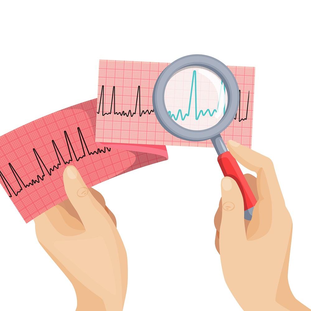 Ревмокардиты: особенности течения и лечения у беременных