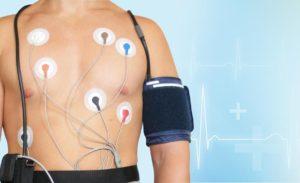 Синдром ранней реполяризации желудочков