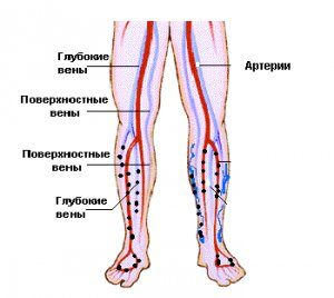 Флебит симптомы и лечение
