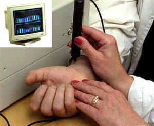 Что такое сфигмография Нормальный пульс у взрослого человека