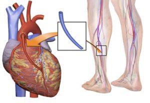 Шунтирование сердца что это такое