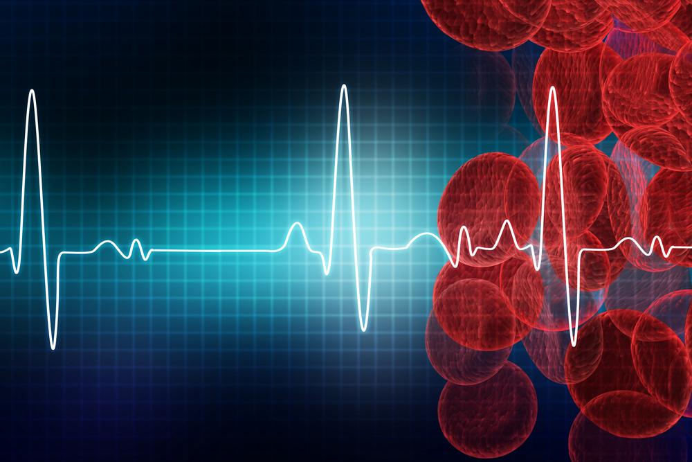 Синусовая брадикардия синдром ранней реполяризации желудочков
