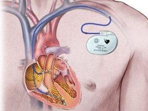 Аритмия сердца чем лечить