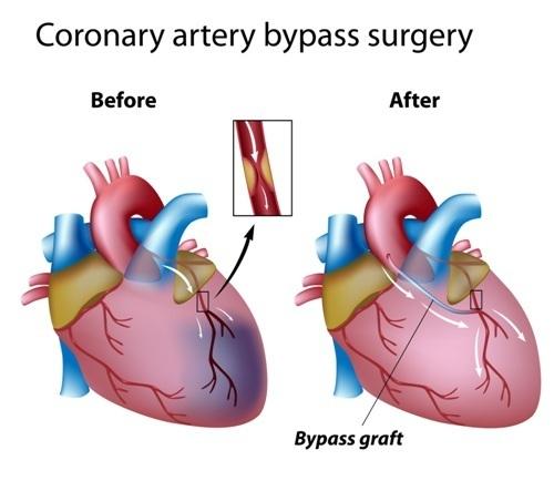 Шунтирование сердца: что это такое?