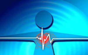 Спорт и кардиовертер-дефибриллятор совместимы ли они