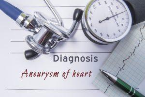 аневризма,аневризма сердца