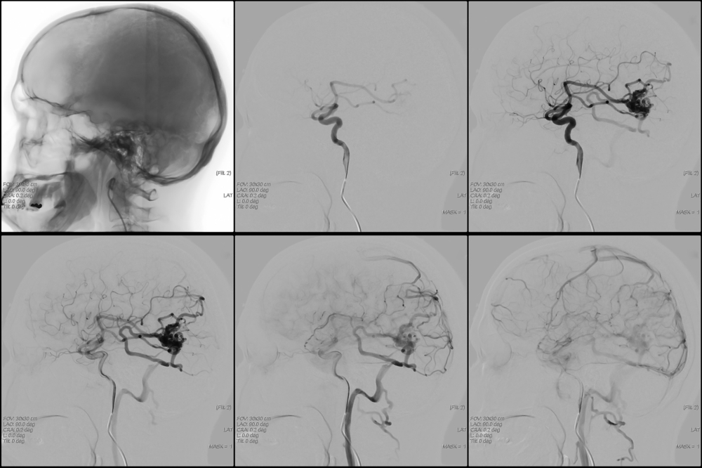 Венозная ангиома левой гемисферы мозжечка