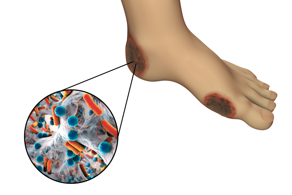 Критическая ишемия нижних конечностей лечение народными средствами