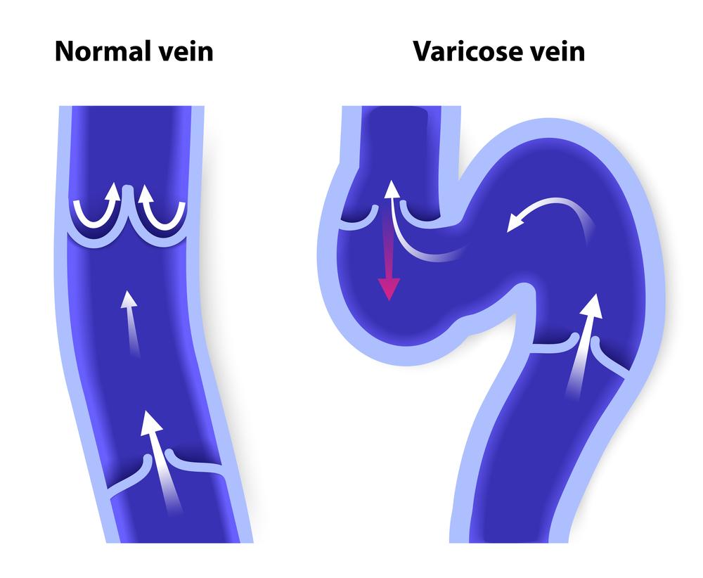 Варикозное расширение вен пищевода - диагностика, лечение и отзывы