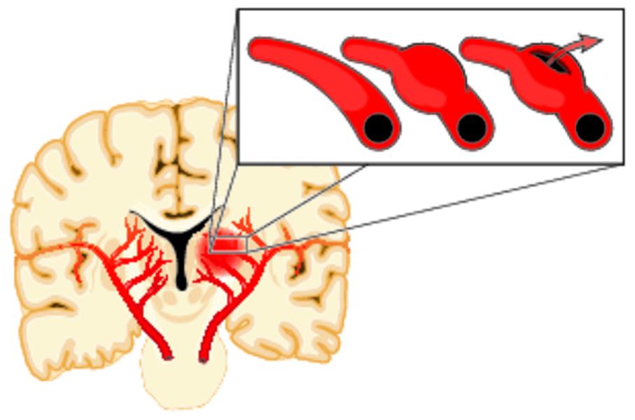 Признаки и симптомы аневризмы головного мозга, причины, диагностика и лечение