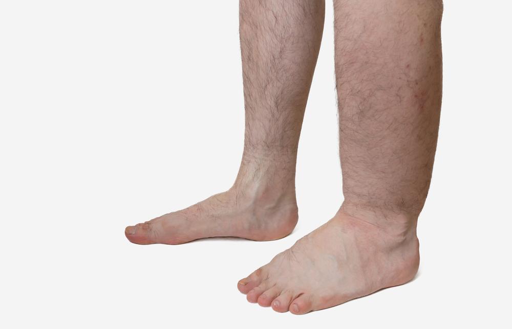 Лимфадема на ноге лечение