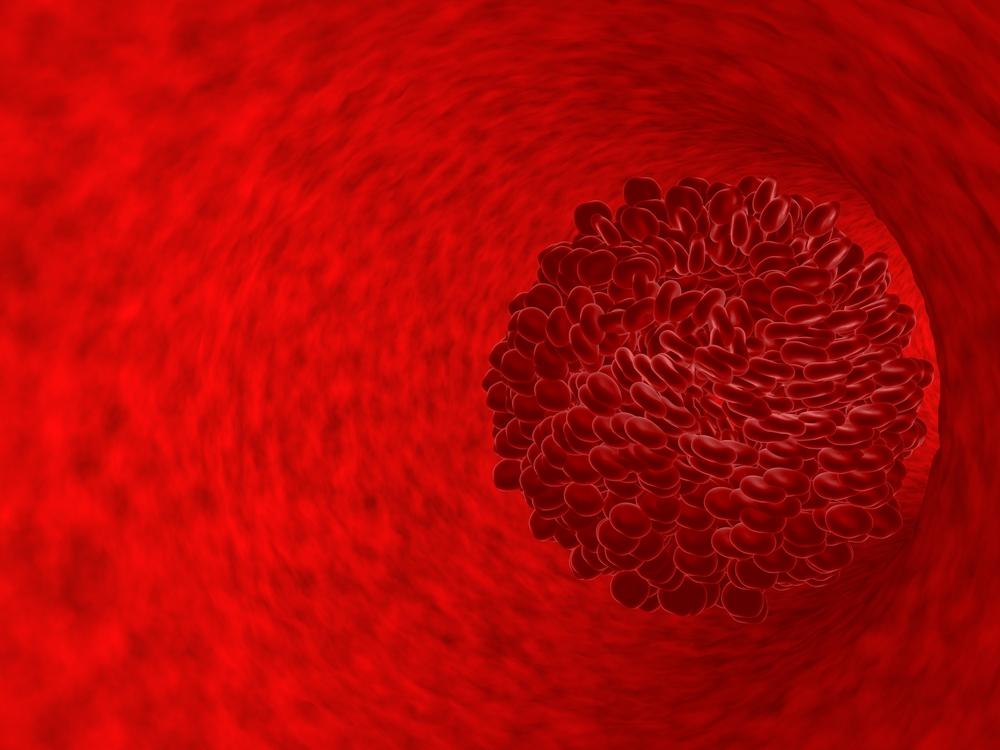 Тромбоз глубоких вен нижних конечностей: лечение, симптомы и причины. Тромбоз глубоких вен нижних конечностей лечение народными средствами