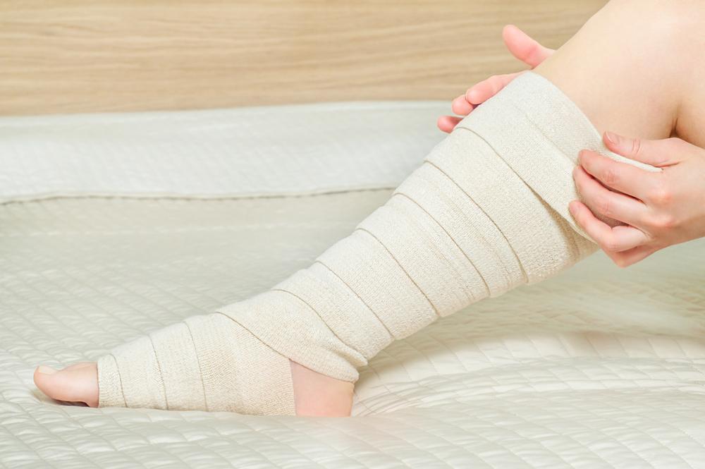 Флебэктомия вен нижних конечностей - послеоперационный период, ход операции и последствия